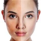 Giải pháp cải thiện làn da từ bên trong
