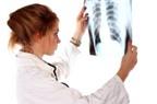 Đoán bệnh ung thư phổi qua hơi thở