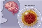 Nguyên nhân phổ biến của bệnh viêm não