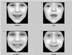 Chẩn đoán bệnh di truyền qua nét mặt