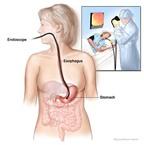 Giúp bạn sớm hồi phục sau điều trị K dạ dày