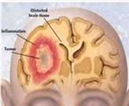 Nghiên cứu vắc-xin điều trị bệnh ung thư não