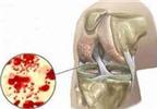 Các phương pháp điều trị viêm mủ khớp hiệu quả