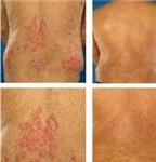 Điều trị vẩy nến thể đỏ da toàn thân