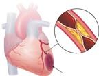 Điều gì xảy ra nếu bạn bị bệnh mạch vành