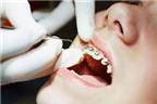 AloBacsi ơi: Chỉnh răng có ảnh hưởng tới sức khỏe?