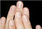 Móng tay tiết lộ sức khỏe của bạn