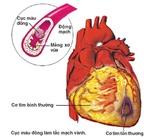 Xơ vữa động mạch: Nguyên nhân chính gây đột quỵ