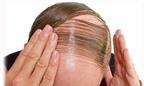 Quý ông hói đầu dễ bị ung thư tiền liệt tuyến?