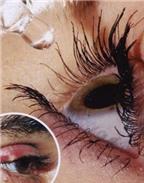 Cách chữa lẹo mắt