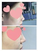 Rộ mốt nâng mũi chỉ bằng một mũi tiêm Filler