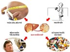 Những bài thuốc quý chữa khỏi viêm gan, gan nhiễm mỡ, mỡ trong máu