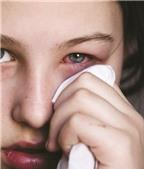 Thuốc điều trị bệnh viêm kết mạc