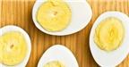 4 loại thực phẩm giúp bạn chống đầy hơi