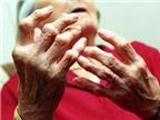 Nhận biết và điều trị viêm khớp dạng thấp