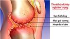 Dưỡng chất sinh học mới giúp bảo vệ sụn khớp hiệu quả