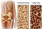 Chứng đau, nhức xương khớp