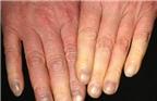 Đoán bệnh ở bàn tay lạnh