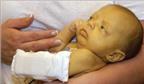 Nguyên nhân và cách trị vàng da ở trẻ