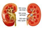 Nguyên nhân, triệu chứng của bệnh sỏi thận