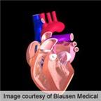 Cách mới chữa suy tim