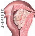 Cách dùng trà ngừa ung thư nội mạc tử cung hoàn hảo