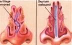 Những bệnh lành tính ở tuyến vú