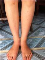 Chân đau nhức như kiến cắn là bệnh gì