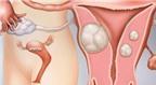 Bệnh u xơ tử cung
