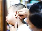 Trẻ em không nên dùng miếng dán chống nôn