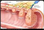 Điều trị và phòng ngừa ung thư đại trực tràng