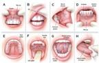 Ung thư khoang miệng