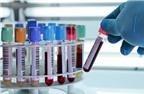 Bệnh bại liệt: Chẩn đoán và phòng bệnh