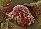 Ung thư - tái khám để phòng ngừa di căn
