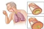 Chế độ ăn cho người có bệnh đường hô hấp