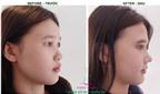 Khác biệt giữa nâng mũi sụn nhân tạo và nâng mũi cấu trúc S-line