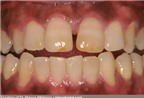 Nhìn răng miệng, chẩn bệnh