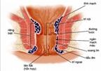 Tác dụng của dầu dừa trong điều trị bệnh trĩ