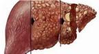 Thuốc mới điều trị viêm gan C