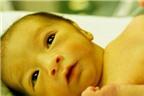 Vàng da ở trẻ sơ sinh
