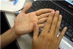 5 biện pháp giải quyết đôi tay ướt mồ hôi
