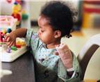 Trẻ bị bỏng - cần làm gì?