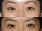Sụp mí mắt: Nguyên nhân, triệu chứng, phòng ngừa