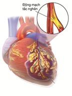 Thuốc điều trị nhồi máu cơ tim