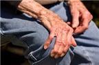 Chứng bệnh Parkinson có thể phòng ngừa không, BS ơi?