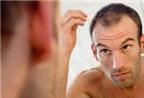 Dùng thuốc gì để kích thích mọc tóc, giảm nhờn da đầu, thưa BS?