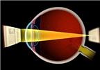 Viễn thị: Nguyên nhân, phòng ngừa và điều trị