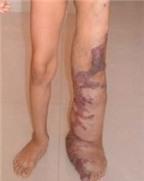 Rối loạn mạch máu bẩm sinh và cách trị