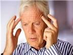 Cách trị cơn đau đầu nhanh chóng ngày Tết