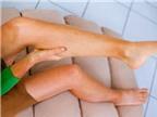 Đau bắp chân là biểu hiện của bệnh gì?